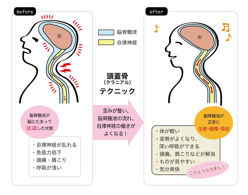 クラニアル(頭蓋骨)テクニックによって脳にたまった脳脊髄液がスムーズに流れ、自律神経の働きが良くなる